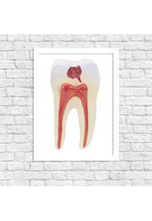 Quadro Decorativo Odontologia Anatomia Do Dente Branco - Médio